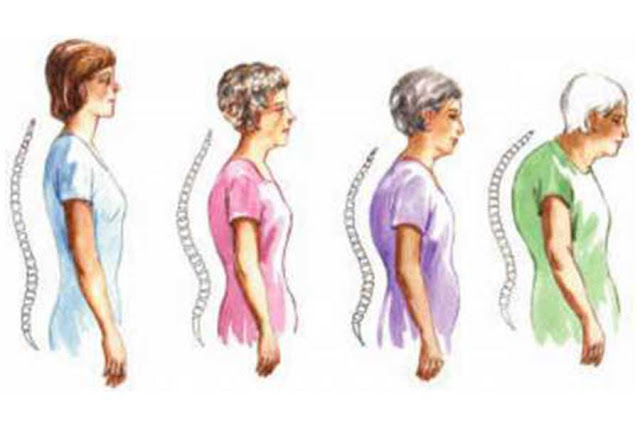 Kenali Yang Menjadi Penyebab Osteoporosis