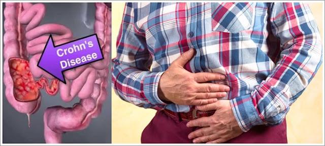 Obat Crohn's Disease Atau Penyakit Crohn Herbal Terbaik