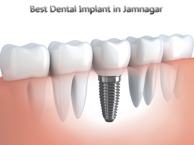 implant dental treatment in jamnagar