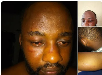 Twitter user demands justice for his friend allegedly assaulted by NDLEA officials in Rivers