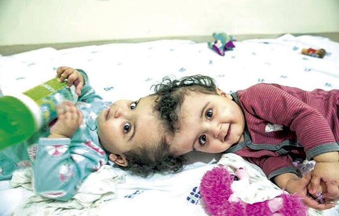 DESTAQUE - Piauiense participa de cirurgia de separação de gêmeas siamesas