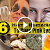 Best Home Remedies To Eliminate For Pink Eye (Sore Eyes) Effectively