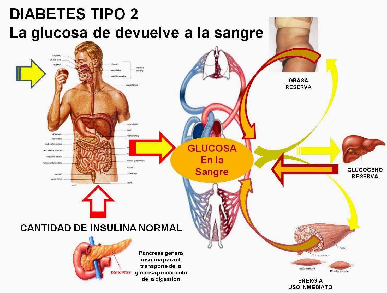 diabetes tipo 2 ejercicios para grasa