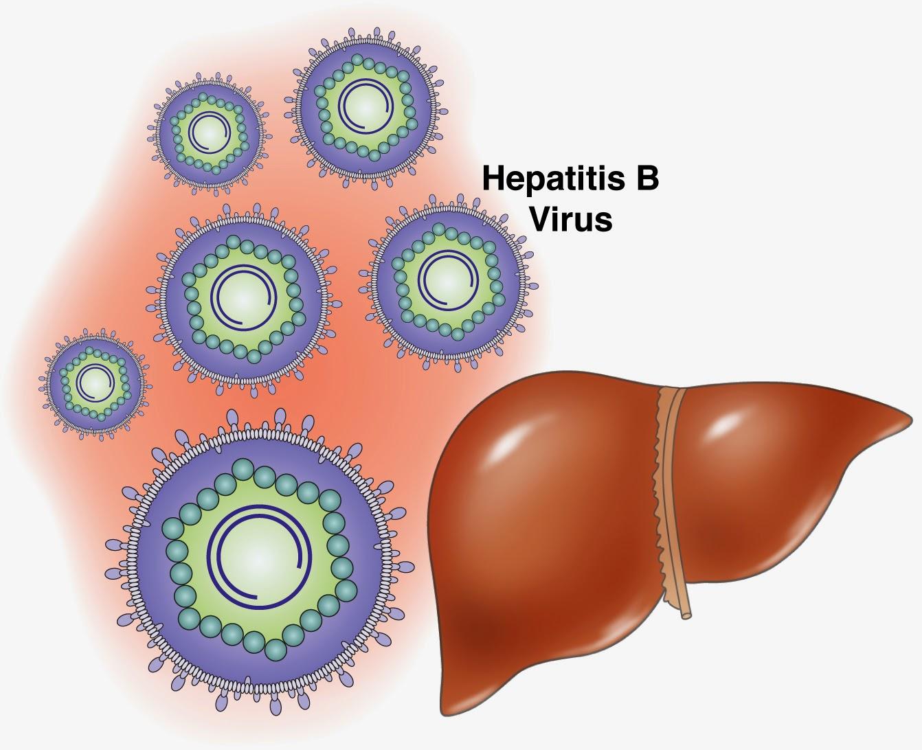Cara Mengobati Hepatitis B