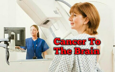 Cancer to the Brain