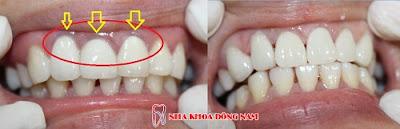 những điều nên biết về trồng răng sứ titan -10