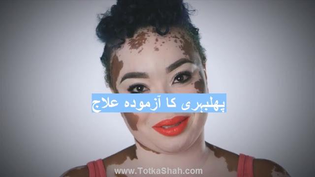 Phulbehri ka ilaj in Urdu - پھلبہری کا آزمودہ علاج