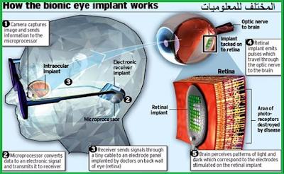 اختراع عجيب لأعادة البصر للمكفوفين