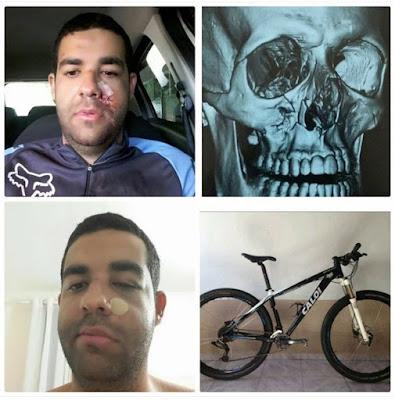 Ciclista atacado a paulada no Rio Vermelho neste domingo relata agressão nas redes sociais