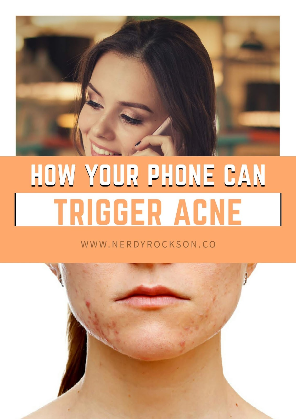 How Your Phone Can Trigger Acne