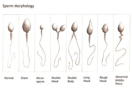 Sorry, my sperm isnt white