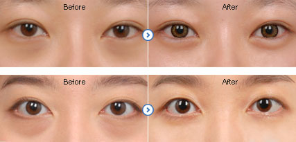 ID Hospital Korea: ophthalmoplasty Dark Circle