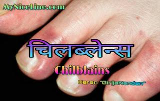 चिलब्लेन्स के लक्षण कारण, चिकित्सा व बचाव के विषय मे संपूर्ण जानकारी all information about the symptoms, causes, treatment and prevention of chilblains in hindi