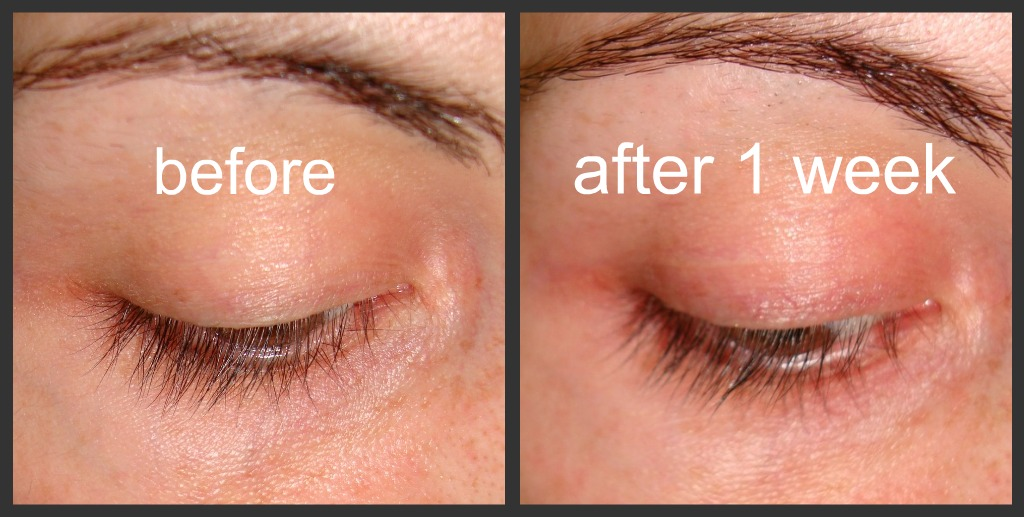 bd209aad248 Prettied Up: I started using Latisse! Here are my results after one ...