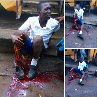 School boy reportedly loses half of his leg in a terrible accident