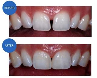 Hai răng cửa bị hở có nên trám hay không?