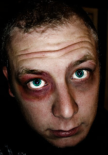 funny man with two black eyes joke picture