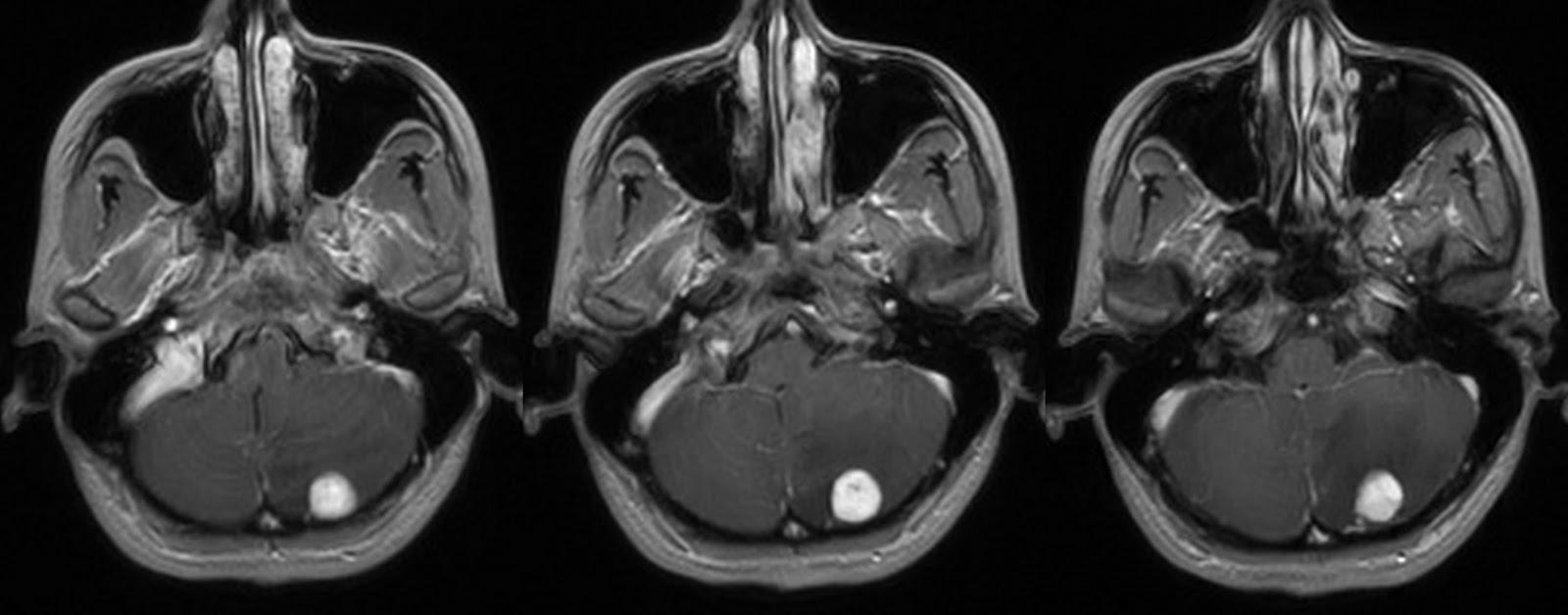 Hemangioblastoma without Cystic component MRI
