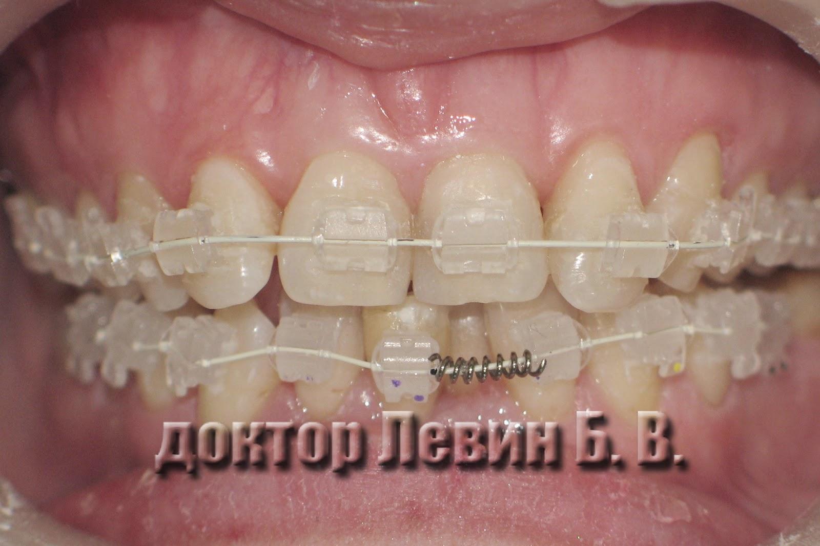 Фотография керамическиех брекетов установленных на нижний зубной ряд