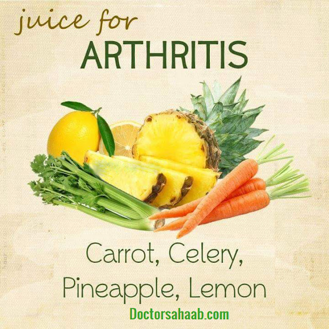 Juice for Arthritis (Carrot+Celery+Pineapple+Lemon)