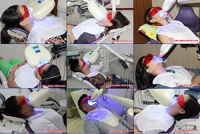 tẩy trắng răng tại nha khoa có mấy loại -6