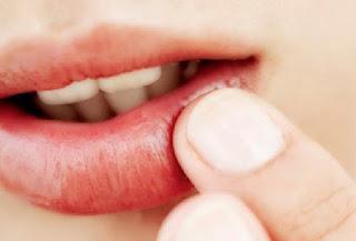 Cara Mengatasi Bibir Pecah dan Sariawan Secara Alami