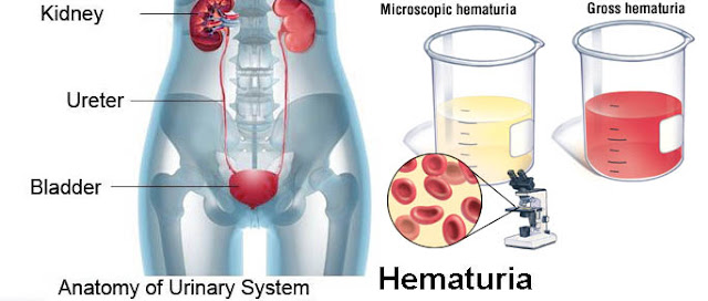 Blood In Urine Hematuria Causes Diagnosis And Treatment