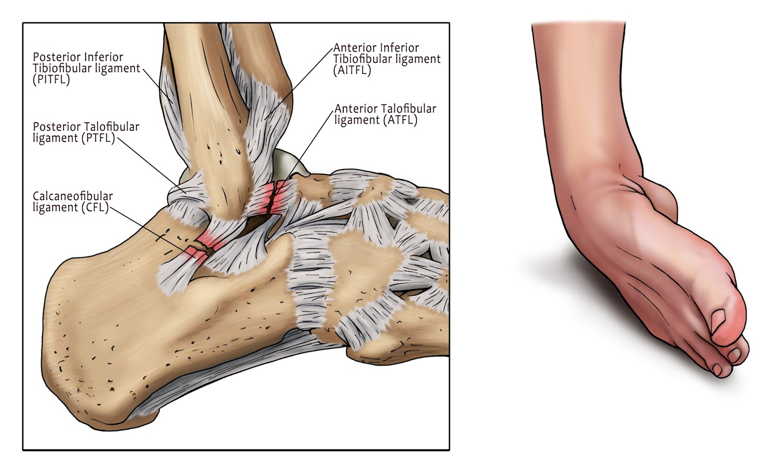 Sports and ACL Injuries: Ankle Sprains Can Be More Than They Appear