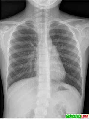 Bilateral diffuse in ltrates in a 9-year-old child with Mycoplasma pneumonia.