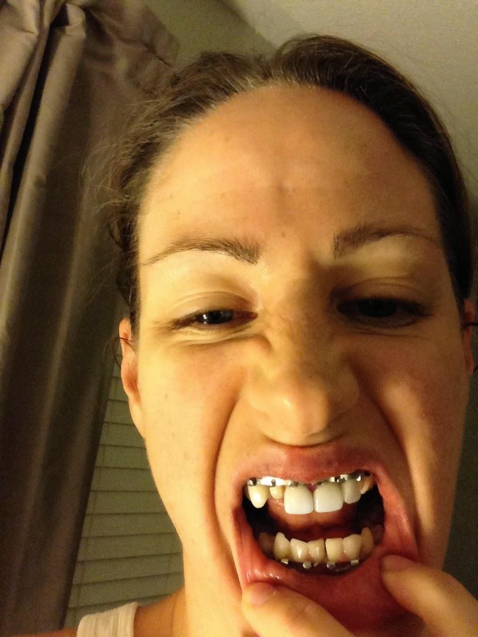 Wiring Mouth Shut For Broken Jaw