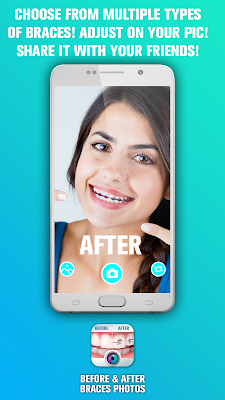 Best android application Before and After Braces Photo !