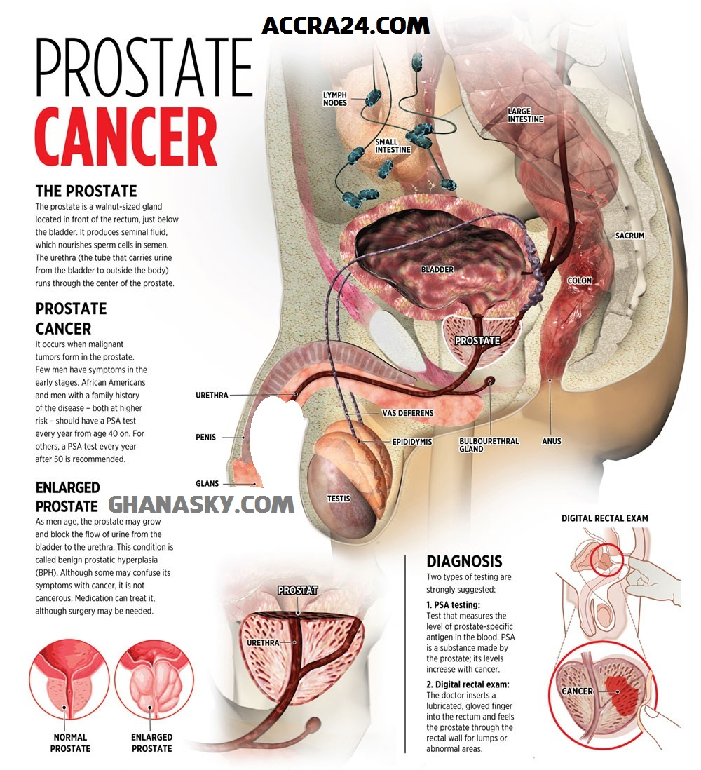 prostate cancer signs and symptoms plus prevention [video, Human Body