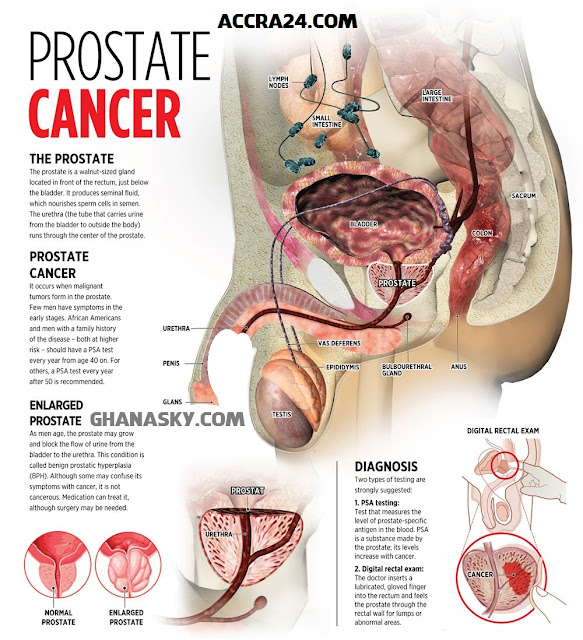 Prostate Cancer Signs, Symptoms & Prevention