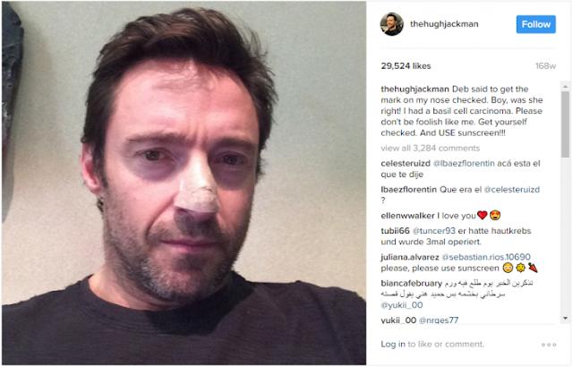 Hugh Jackman revela que tiene cáncer por 6ta ocasión