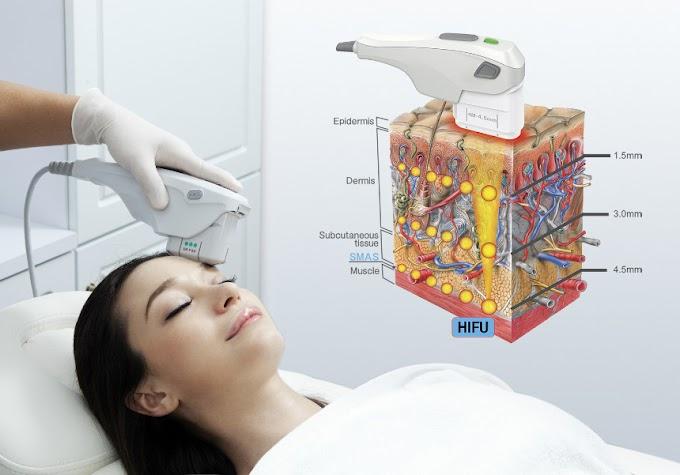 HIFU... H Nέα Tεχνολογία Σύσφιξης για τις Θεραπείες μας στο Σπίτι!