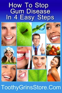gingivitis is gum disease in an early stage