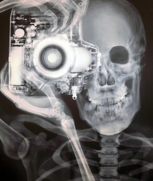 x ray photography