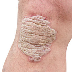 Pengobatan Alternatif Psoriasis
