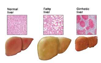 Herbalife Side Effect Liver Problem