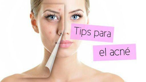 remedios caseros  para eliminar el acne  y tener una cara de porcelana
