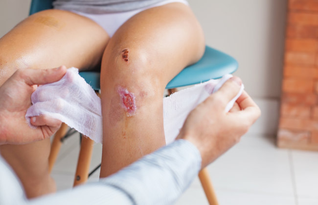 Image result for wound infection adalah