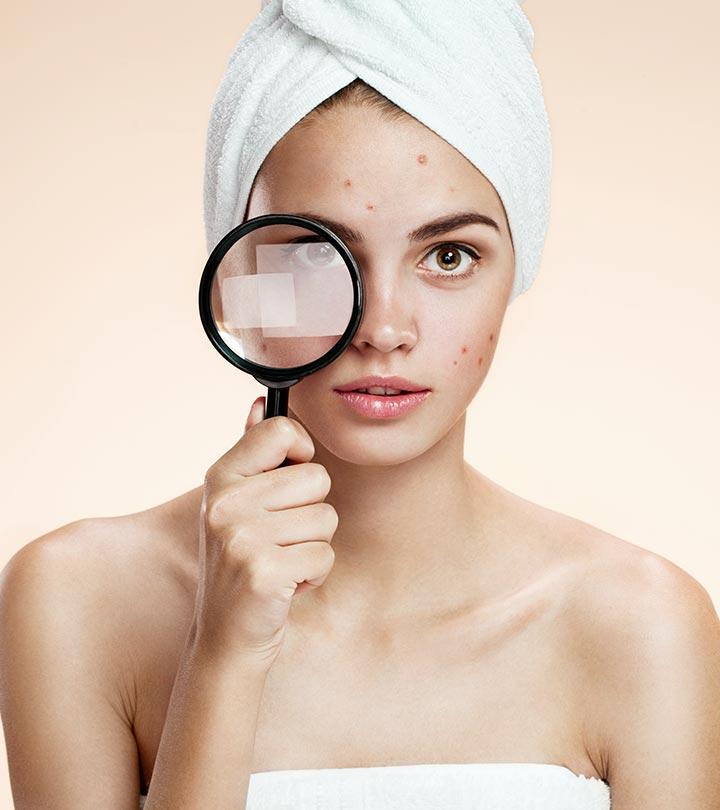 ముఖాన ఉన్న నల్లమచ్చలు ఇలా తొలగించాలి ! - An easy tip to remove the Blockheads in the face