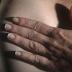 Hospital das Clínicas realiza mutirão de reconstrução mamária