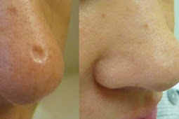 This Homemade Cream Can Help You Eliminate Scars & Refresh Your Skin For Only 10 Minutes Per Day!