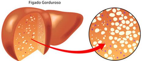 Qual exame detecta gordura no figado