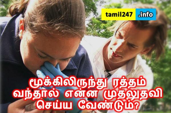 மூக்கிலிருந்து ரத்தம் வந்தால் முதலுதவி செய்ய வேண்டும், மூக்கில் இருந்து ரத்தம் வடிவது, nose bleeding first aid in tamil, mookil ratham kasivadhu nirkka tips, mudhaludhavi