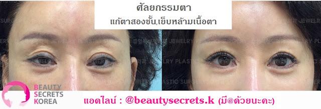 รีวิวศัลยกรรมเกาหลี เอเจนซี่ศัลยกรรมเกาหลีBSK : รีวิวรวบรวมศัลยกรรมตา แก้ตา กรีดและเปิดหัวหางตา ปรับ
