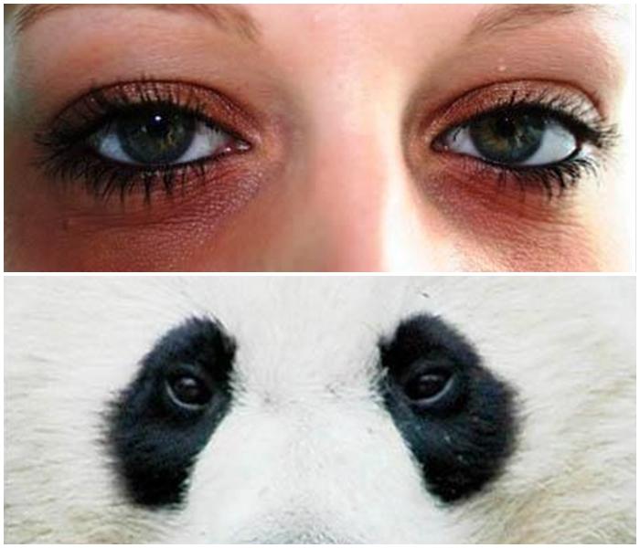 Atasi Masalah Mata Panda dengan Cosmoderm Eye Treatment Gel
