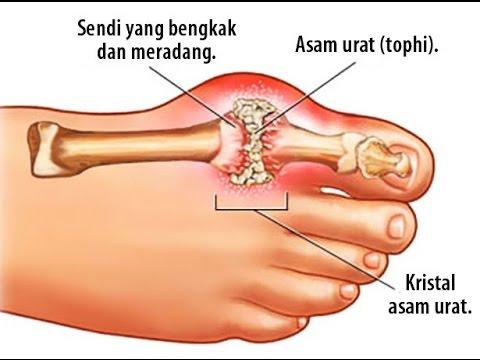 Obat untuk nyeri persendian lutut