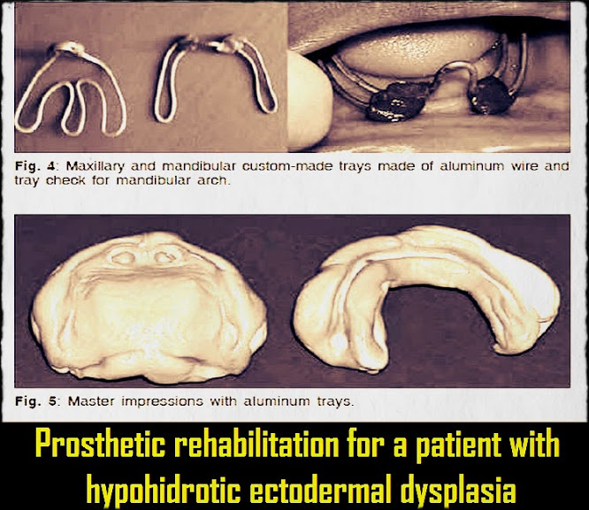 hypohidrotic ectodermal dysplasia printable pdf